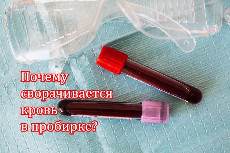 Почему сворачивается кровь в пробирке